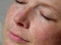 Какая мазь от пигментных пятен на лице эффективнее?