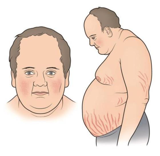 болезнь и синдром иценко кушинга