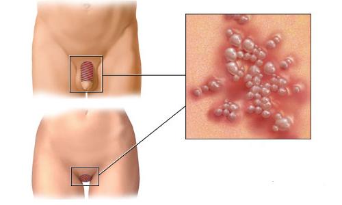 2 тип герпеса называется генитальным. Само название уже свидетельствует о том, как передается инфекция