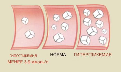 Гипогликемия и гипергликемия