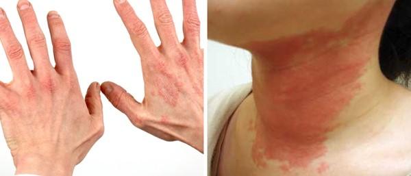 Аллергическая реакция может быть различной от незначительной сыпи на коже до анафилактического шока