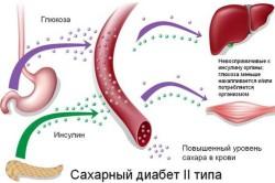 Схема диабета 2-го типа