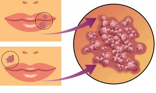В жидкости пузырьков, которые образуются на губах, содержится большое количество вирусов