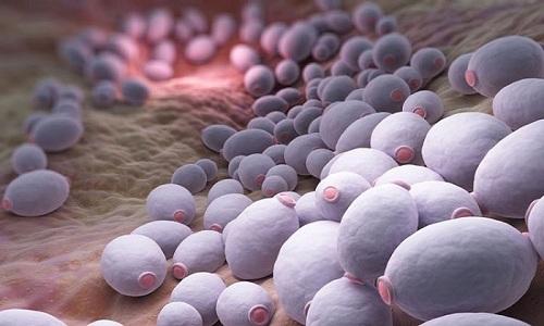 Часто причиной развития цистита становится грибковая инфекция