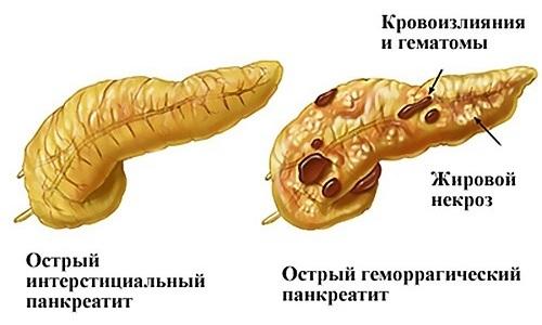 При остром панкреатите обнаруживается локальное или распространенное увеличение железы, изменение ее контуров, отечность окружающих тканей
