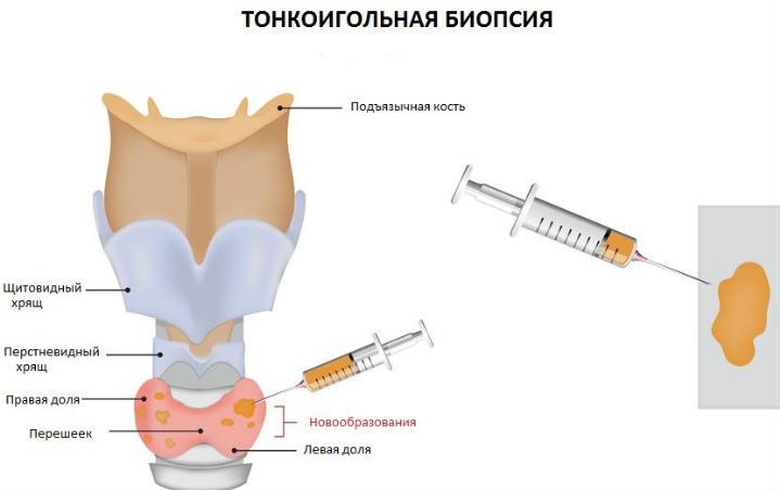проблемы с щитовидкой биопсия