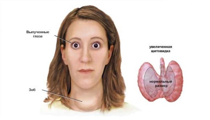 проблемы с щитовидкой признаки