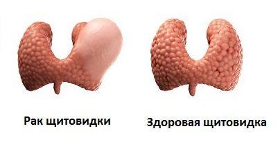Щитовидная железа в норме