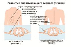 Схема введения инсулина