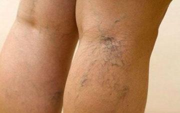 Симптомы и лечение заболевания сосудов нижних конечностей