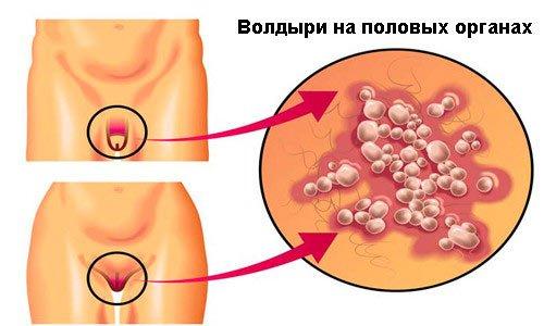 Генитальный герпес — это одно из распространенных венерических заболеваний, такая болезнь чаще всего передается половым путем