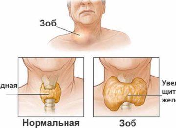 Народные средства против причин и симптомов зоба щитовидной железы